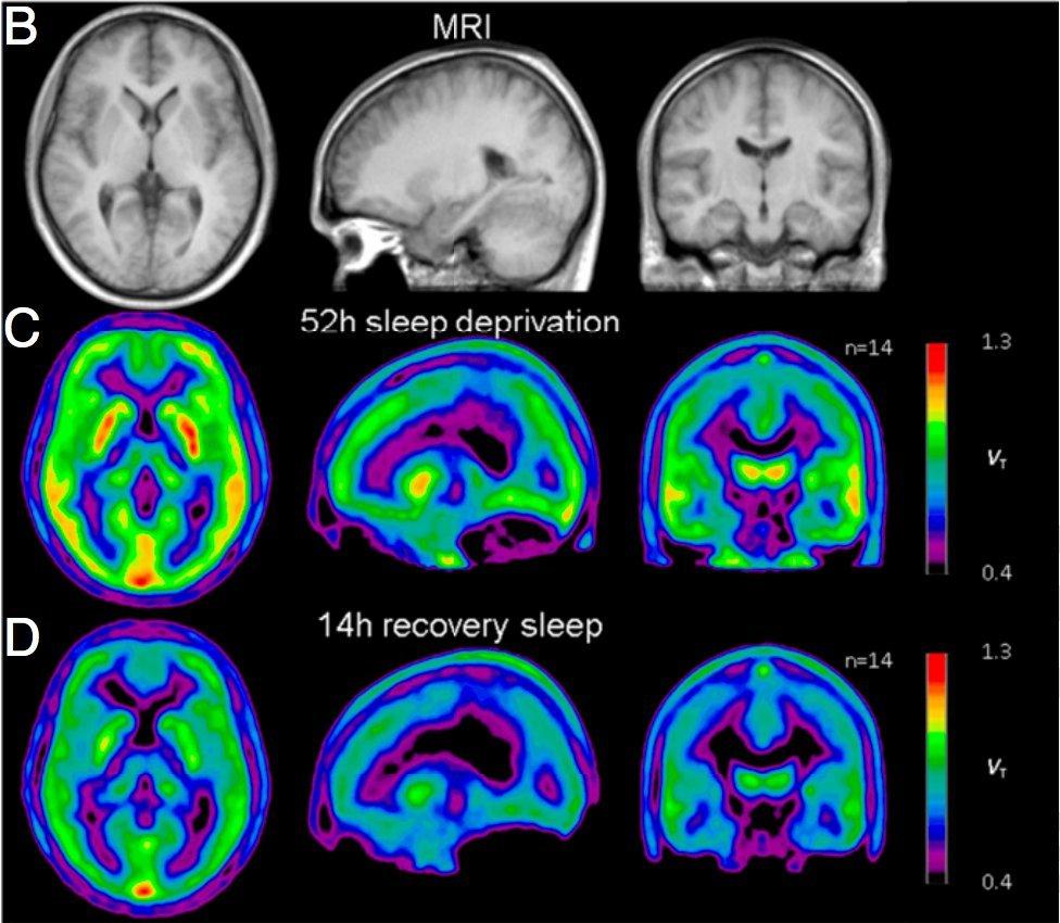 Mózg PET deprywacja snu